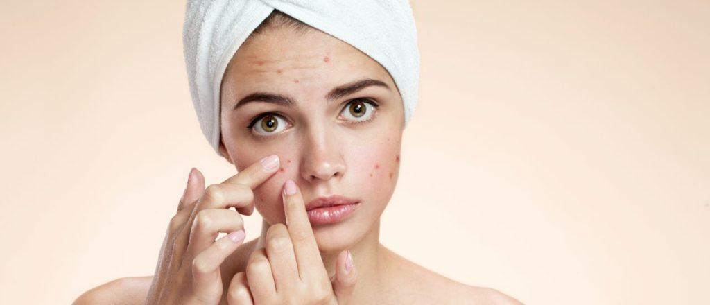 acne treatment clinic